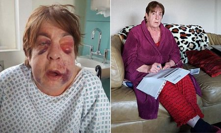 Family collect of Barbara in hospital after the attack.  63-year-old Barbara Dransfield was left with a fractured skull following a burglary ather home in Ashton Under Lyne, Greater Manchester. Two men are facing trial over the attack.