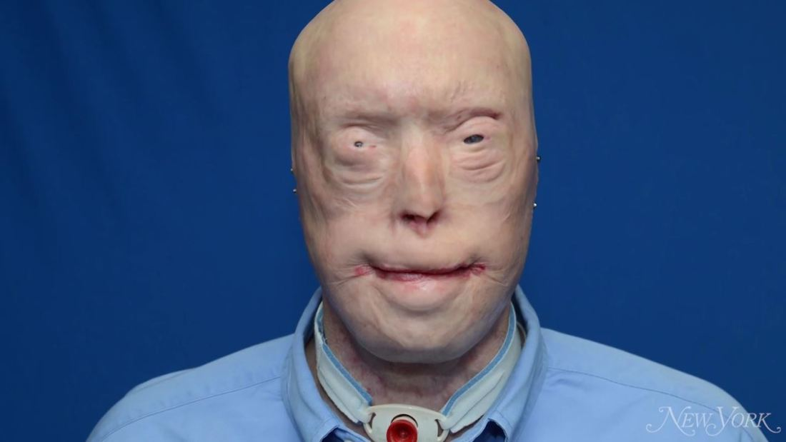 facial-transplant-surgery